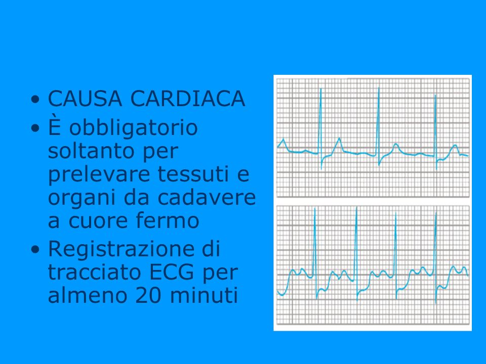 CAUSA CARDIACA È obbligatorio soltanto per prelevare tessuti e organi da cadavere a cuore fermo Registrazione di tracciato ECG per almeno 20 minuti