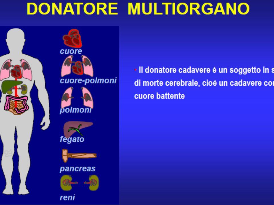 Indicazione al trapianto di: RENE: IRC da diabete, glomerulonefrite cronica, malattia policistica renale, nefrosclerosi, Lupus eritematoso, nefrite in