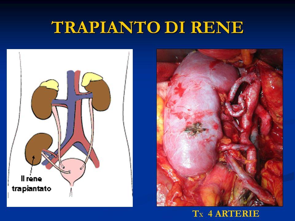 TRAPIANTO DI RENE T X 4 ARTERIE