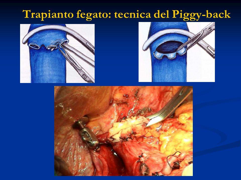 Trapianto fegato: tecnica del Piggy-back