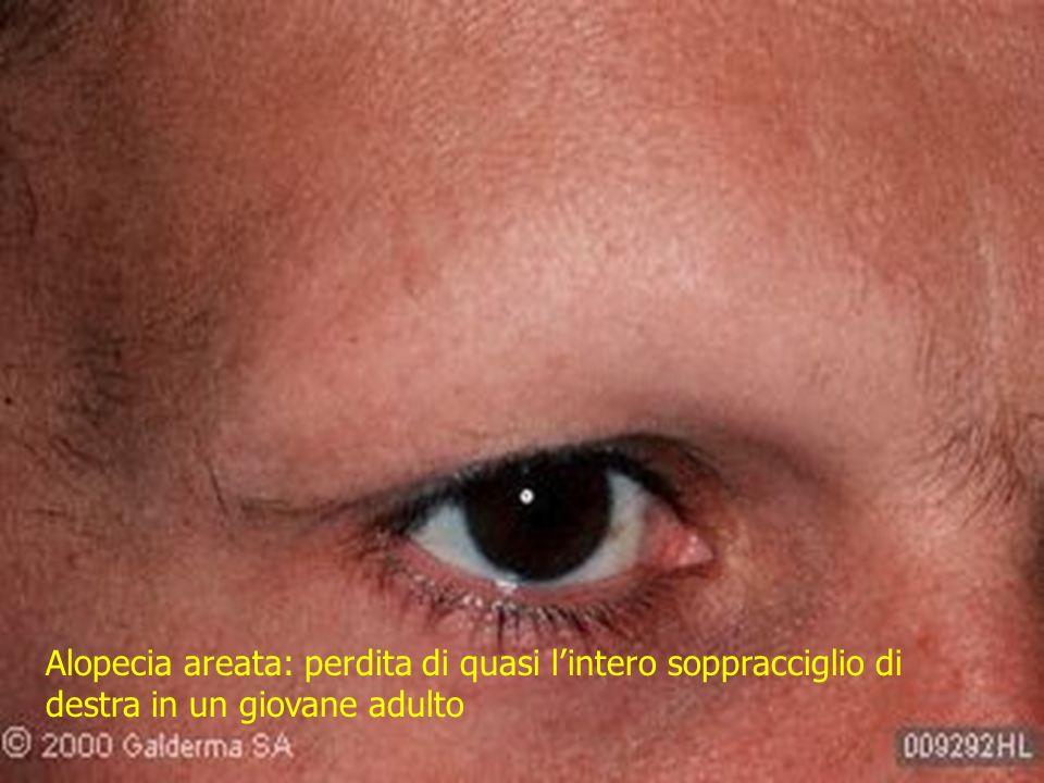 Alopecia areata: perdita di quasi lintero soppracciglio di destra in un giovane adulto