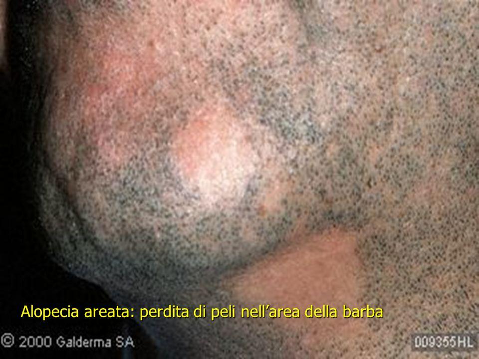 Alopecia areata: perdita di peli nellarea della barba