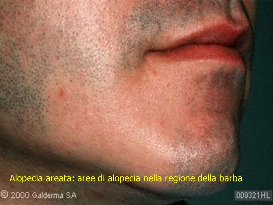 Alopecia areata: aree di alopecia nella regione della barba