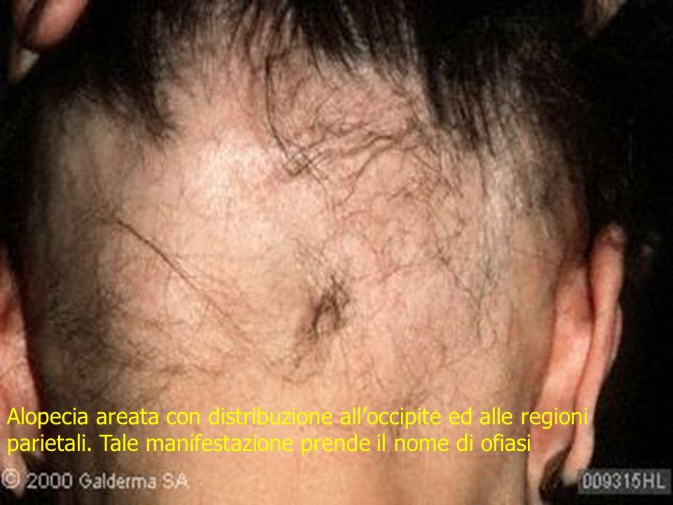 Alopecia areata con distribuzione alloccipite ed alle regioni parietali. Tale manifestazione prende il nome di ofiasi