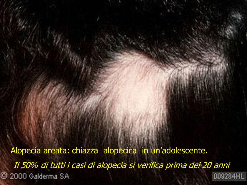 Alopecia areata: chiazza alopecica in unadolescente. Il 50% di tutti i casi di alopecia si verifica prima dei 20 anni
