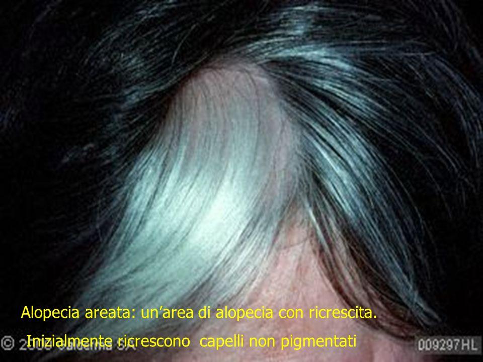 Alopecia areata: unarea di alopecia con ricrescita. Inizialmente ricrescono capelli non pigmentati