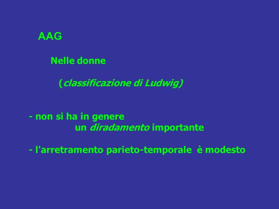 Nelle donne (classificazione di Ludwig) - non si ha in genere un diradamento importante - l'arretramento parieto-temporale è modesto AAG