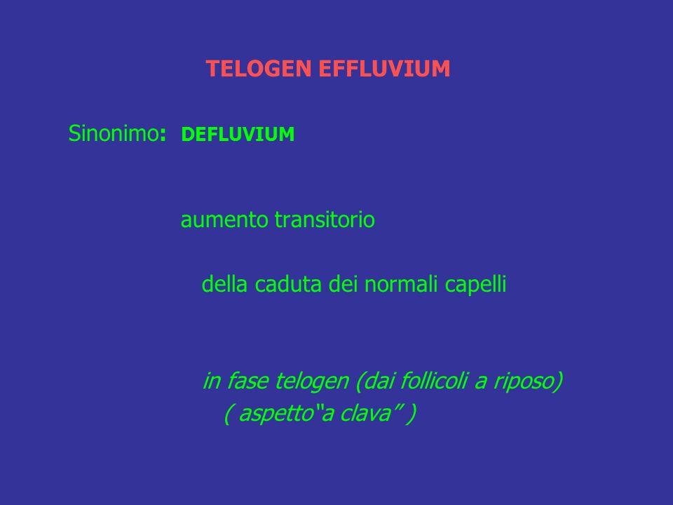 TELOGEN EFFLUVIUM Sinonimo: DEFLUVIUM aumento transitorio della caduta dei normali capelli in fase telogen (dai follicoli a riposo) ( aspettoa clava )