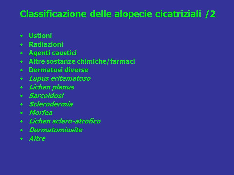 Classificazione delle alopecie cicatriziali /2 Ustioni Radiazioni Agenti caustici Altre sostanze chimiche/farmaci Dermatosi diverse Lupus eritematoso