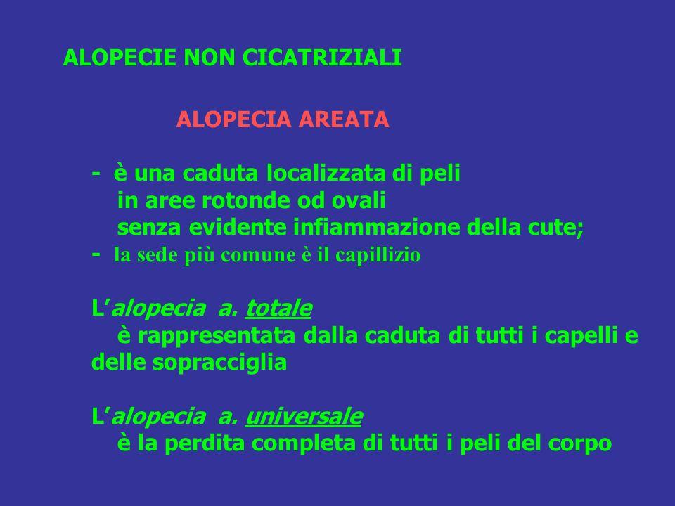 ALOPECIA AREATA - è una caduta localizzata di peli in aree rotonde od ovali senza evidente infiammazione della cute; - la sede più comune è il capilli