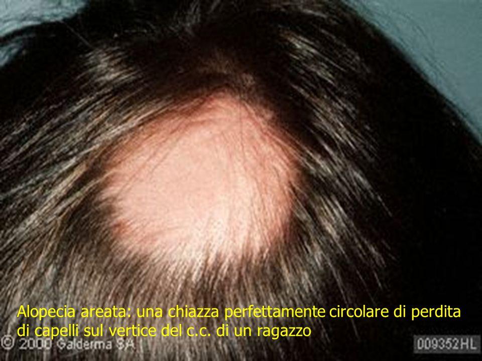 Alopecia areata: una chiazza perfettamente circolare di perdita di capelli sul vertice del c.c. di un ragazzo