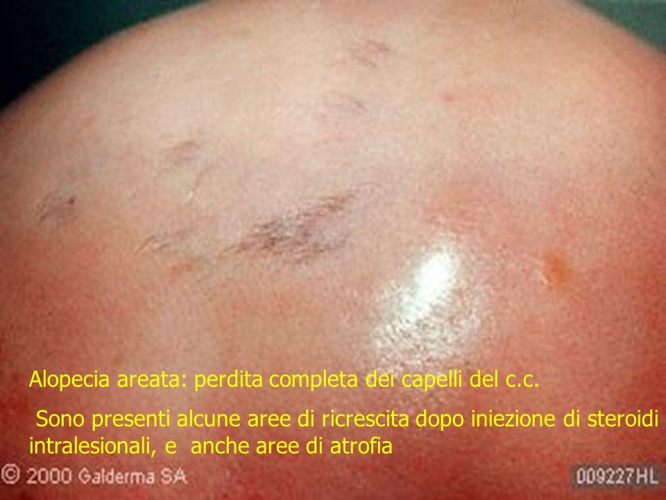Alopecia areata: perdita completa dei capelli del c.c. Sono presenti alcune aree di ricrescita dopo iniezione di steroidi intralesionali, e anche aree