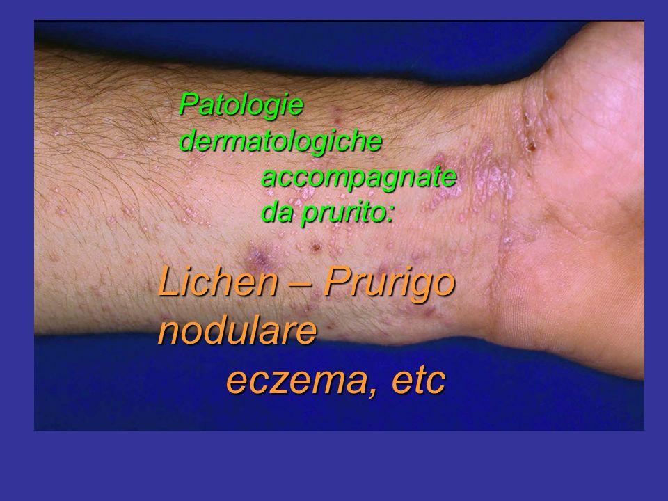 Lichen – Prurigo nodulare eczema, etc eczema, etc Patologie dermatologiche accompagnate accompagnate da prurito: da prurito: