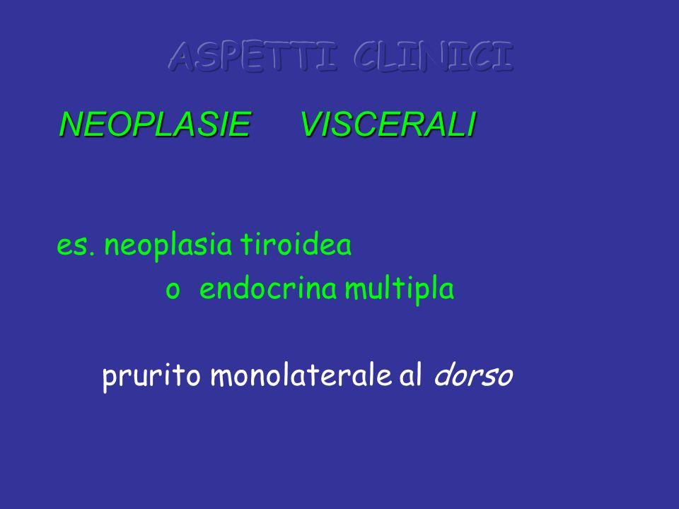 es. neoplasia tiroidea o endocrina multipla prurito monolaterale al dorso NEOPLASIE VISCERALI