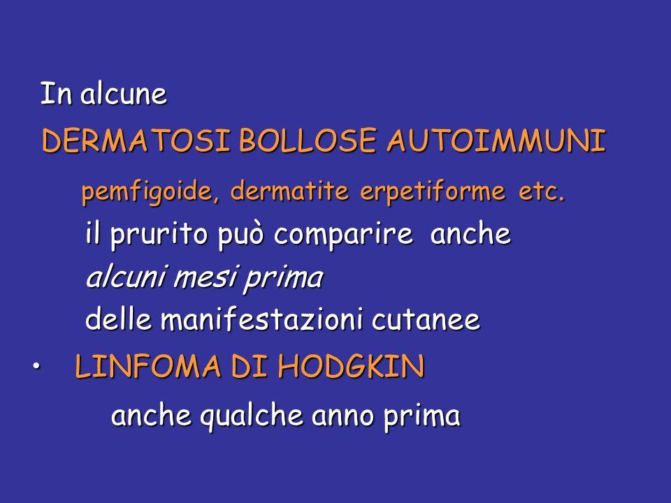 In alcune In alcune DERMATOSI BOLLOSE AUTOIMMUNI DERMATOSI BOLLOSE AUTOIMMUNI pemfigoide, dermatite erpetiforme etc. pemfigoide, dermatite erpetiforme