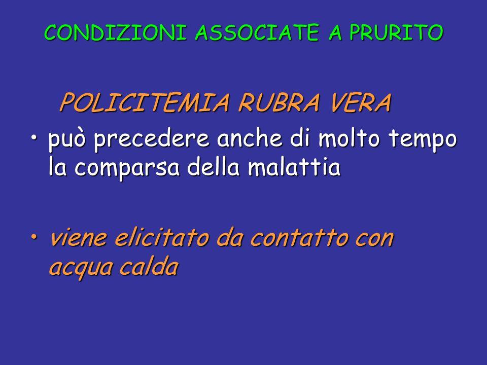 CONDIZIONI ASSOCIATE A PRURITO POLICITEMIA RUBRA VERA POLICITEMIA RUBRA VERA può precedere anche di molto tempo la comparsa della malattiapuò preceder