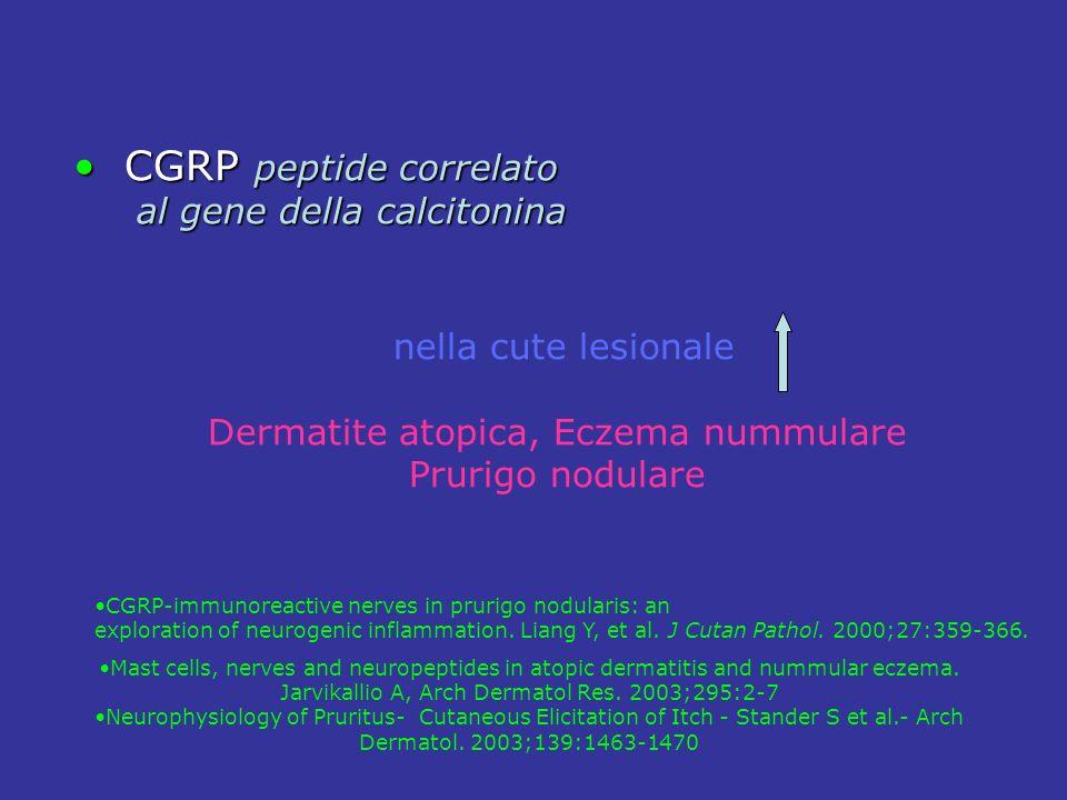 CGRP peptide correlato CGRP peptide correlato al gene della calcitonina al gene della calcitonina nella cute lesionale Dermatite atopica, Eczema nummu