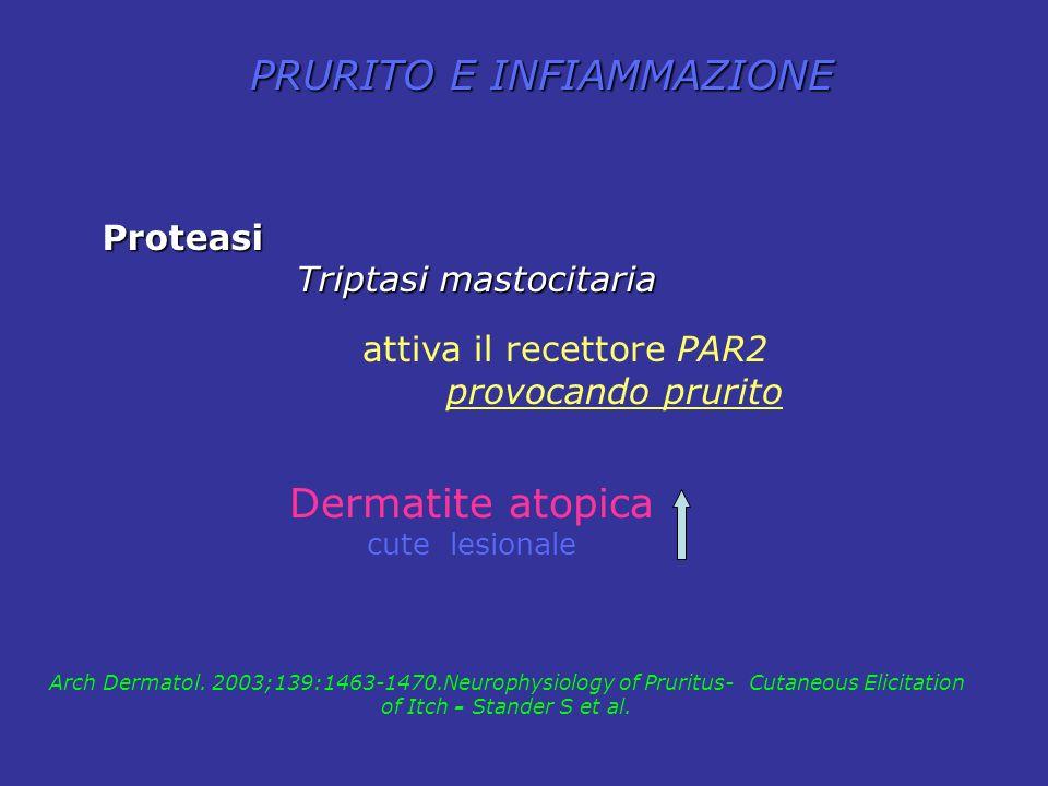 PRURITO E INFIAMMAZIONE Dermatite atopica cute lesionale Proteasi Triptasi mastocitaria Triptasi mastocitaria attiva il recettore PAR2 provocando prur