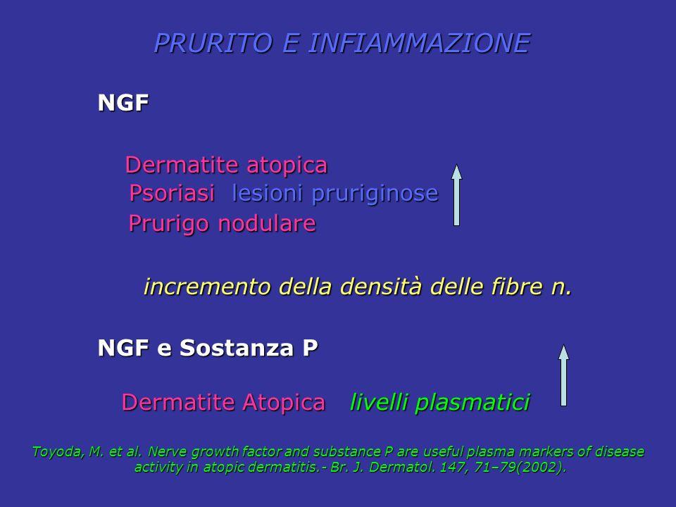NGF Dermatite atopica Dermatite atopica Psoriasi lesioni pruriginose Psoriasi lesioni pruriginose Prurigo nodulare Prurigo nodulare incremento della d