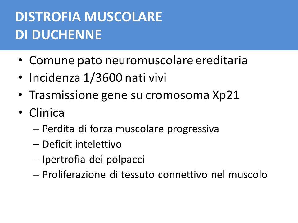 DISTROFIA MUSCOLARE DI DUCHENNE Comune pato neuromuscolare ereditaria Incidenza 1/3600 nati vivi Trasmissione gene su cromosoma Xp21 Clinica – Perdita