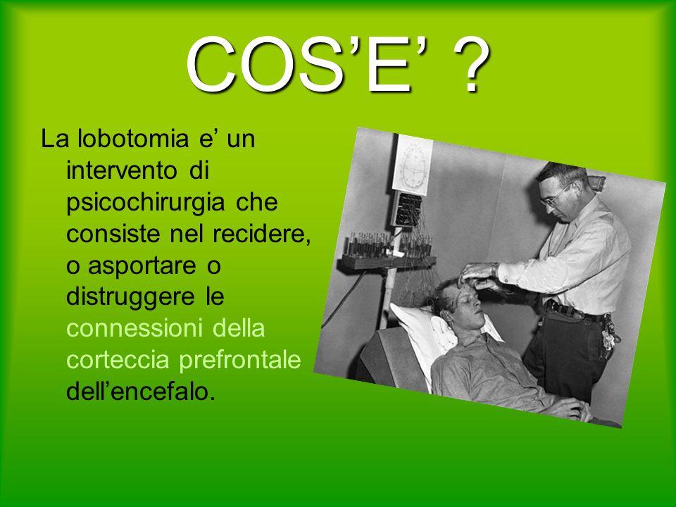 COSE ? La lobotomia e un intervento di psicochirurgia che consiste nel recidere, o asportare o distruggere le connessioni della corteccia prefrontale