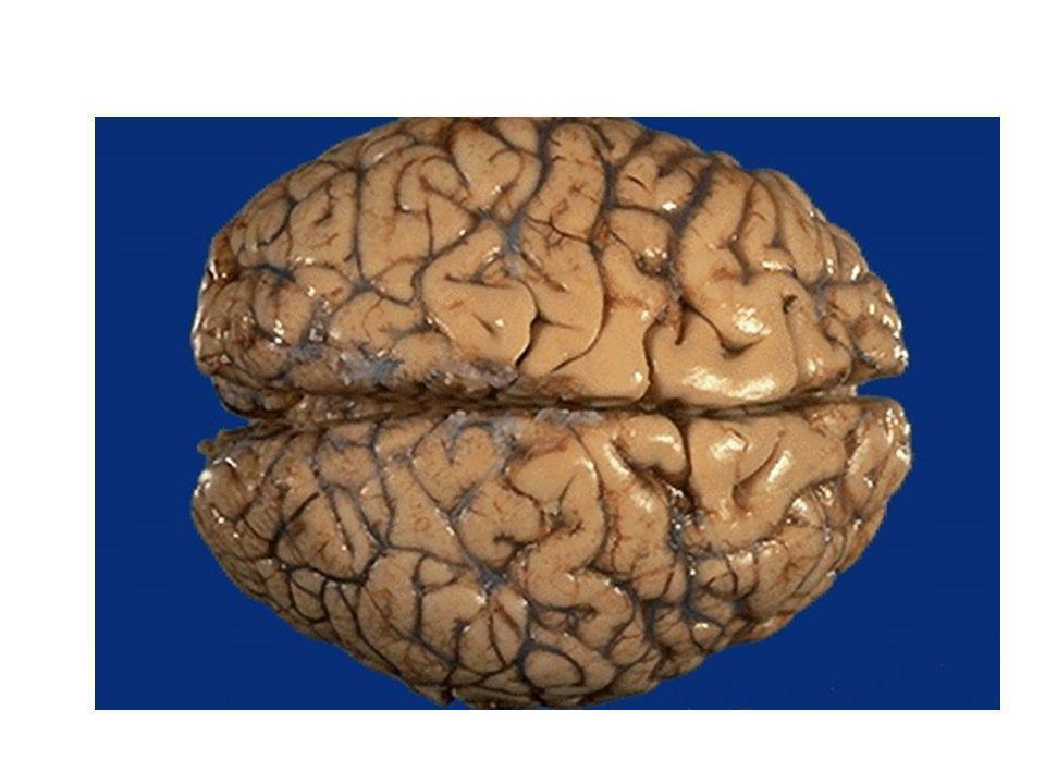 –Larea funzionale chiamata corteccia motoria ha soprattutto la funzione di inviare comandi ai muscoli scheletrici, fornendo risposte appropriate agli stimoli sensoriali.