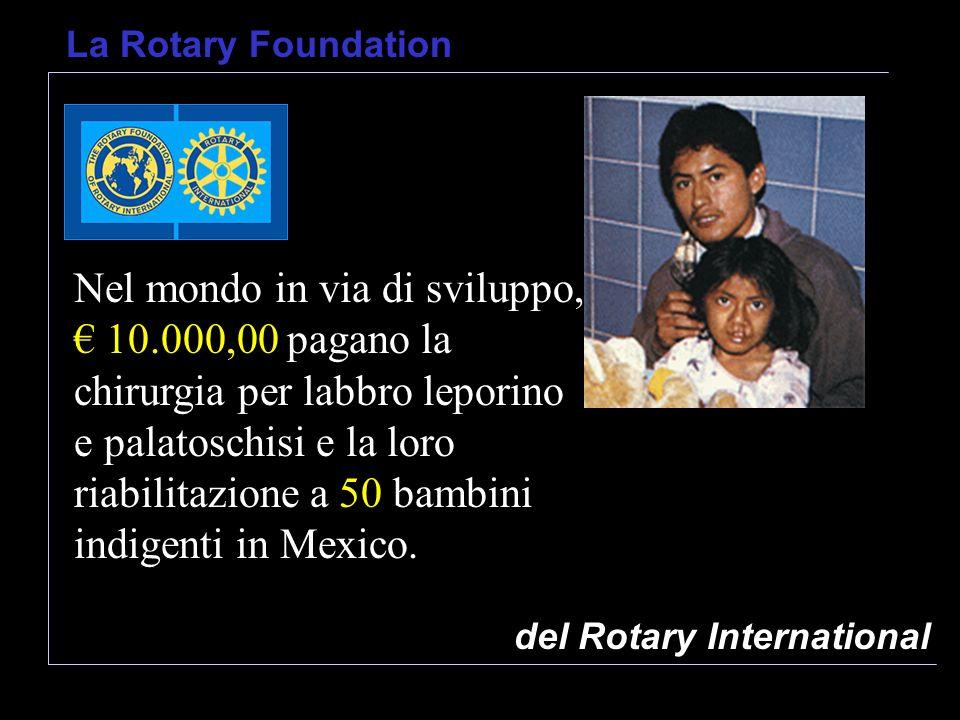 del Rotary International La Rotary Foundation Nel mondo in via di sviluppo, 10.000,00 pagano la chirurgia per labbro leporino e palatoschisi e la loro riabilitazione a 50 bambini indigenti in Mexico.