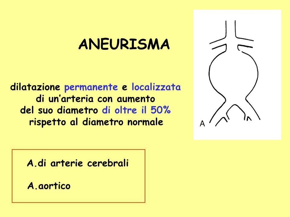 dilatazione permanente e localizzata di unarteria con aumento del suo diametro di oltre il 50% rispetto al diametro normale ANEURISMA A.di arterie cer