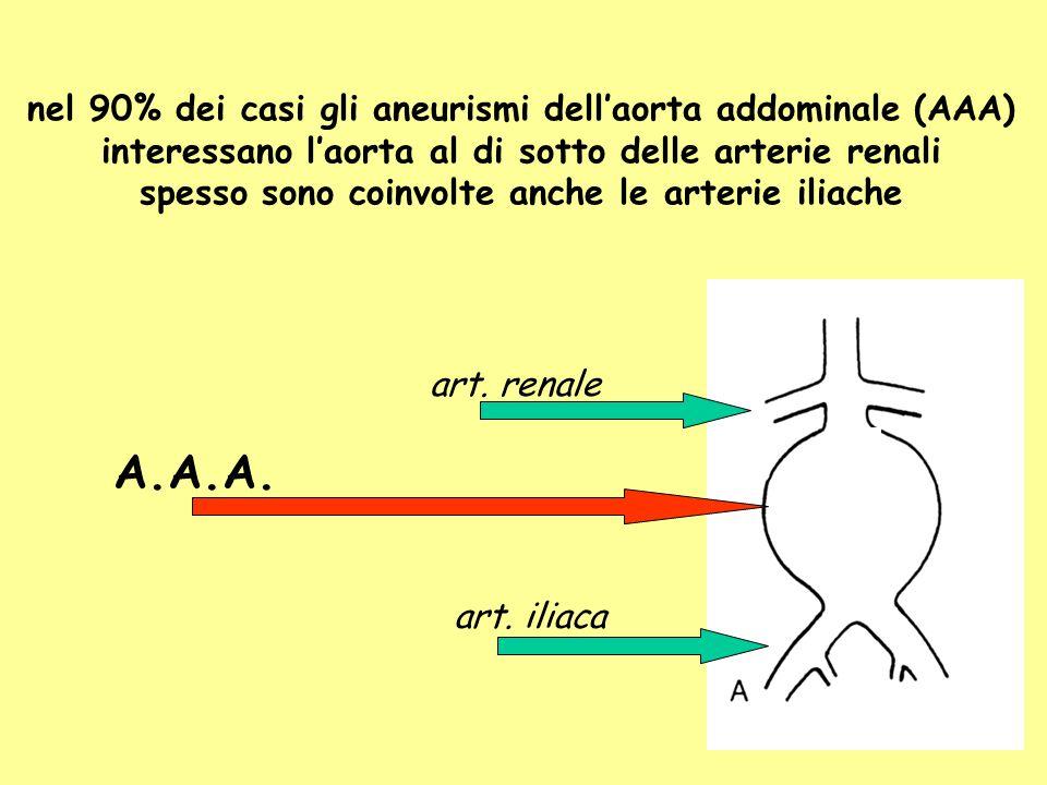 nel 90% dei casi gli aneurismi dellaorta addominale (AAA) interessano laorta al di sotto delle arterie renali spesso sono coinvolte anche le arterie i
