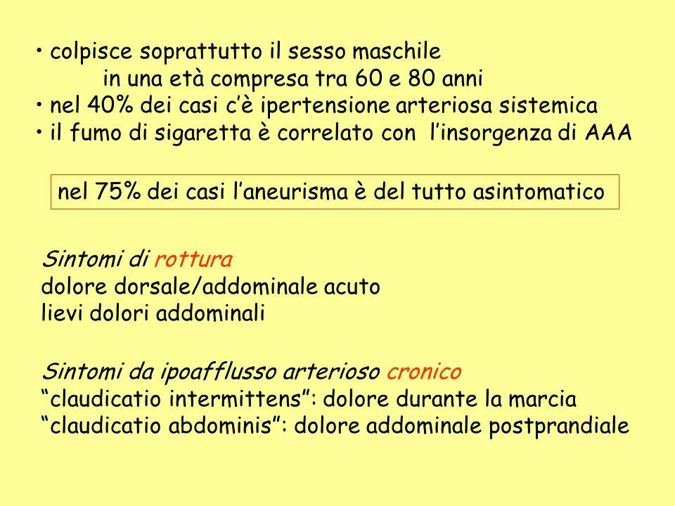 Ipertensione arteriosa .paziente asintomatico, con AAA Aneurisma di dimensioni > 5 cm.