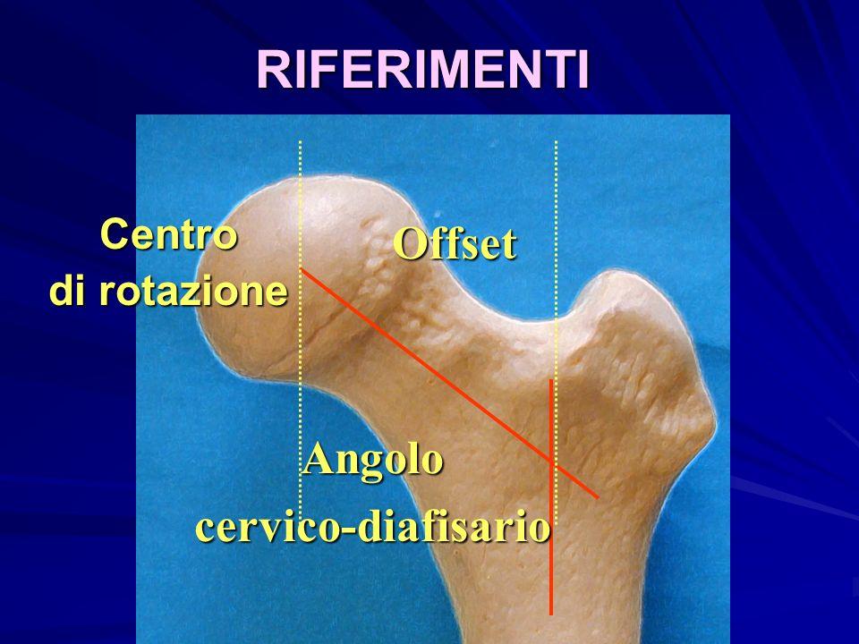 Offset RIFERIMENTI Centro di rotazione Angolocervico-diafisario