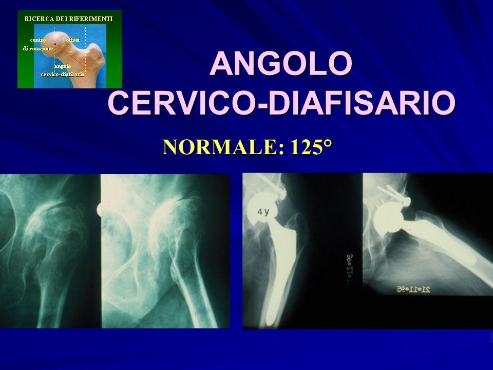 ANGOLO CERVICO-DIAFISARIO NORMALE: 125°