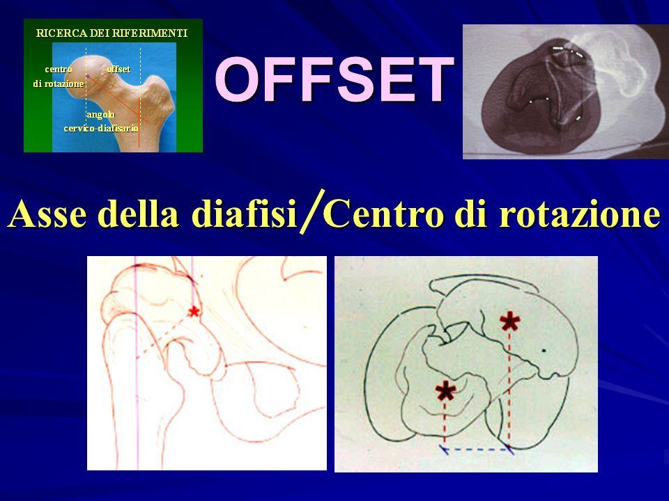 OFFSET Asse della diafisi Centro di rotazione