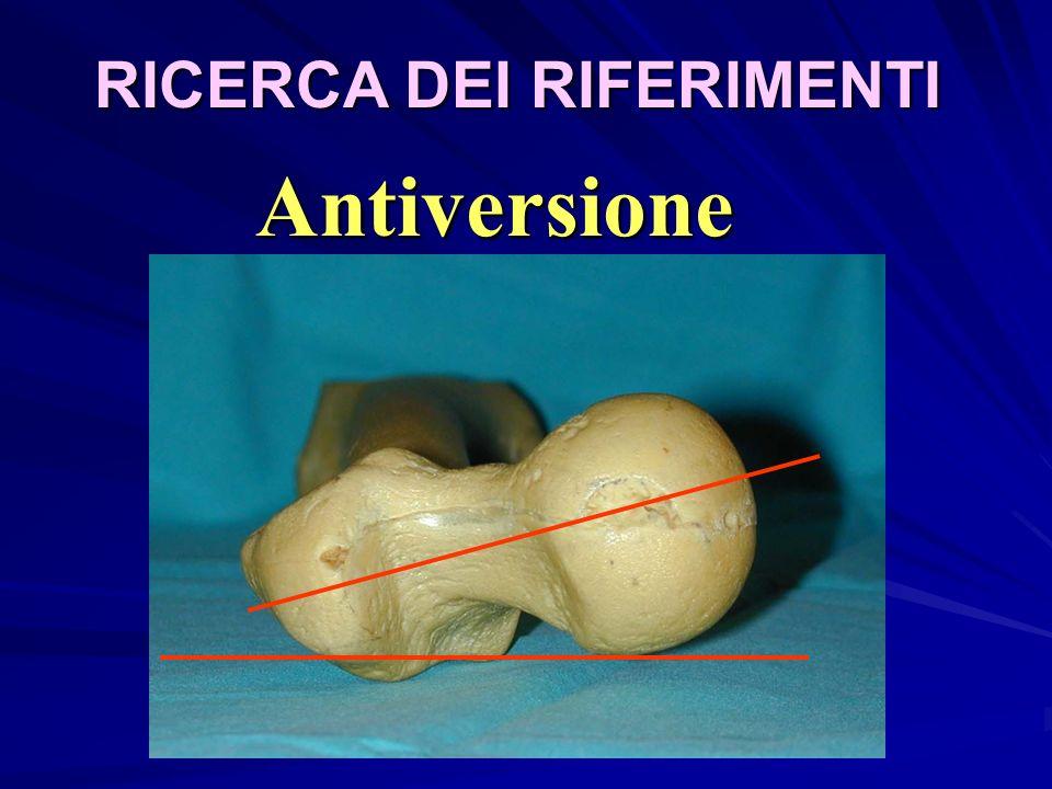RICERCA DEI RIFERIMENTI Antiversione
