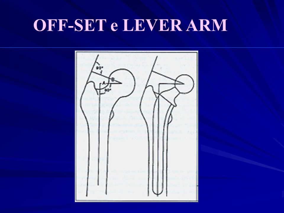 OFF-SET e LEVER ARM