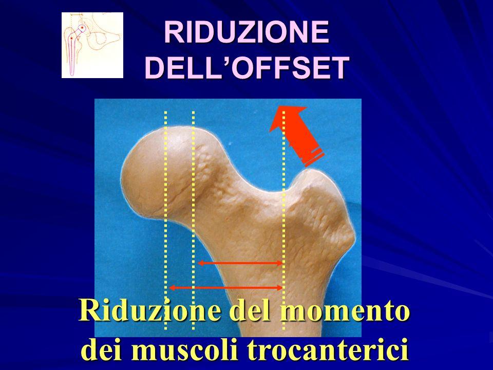 RIDUZIONE DELLOFFSET Riduzione del momento dei muscoli trocanterici
