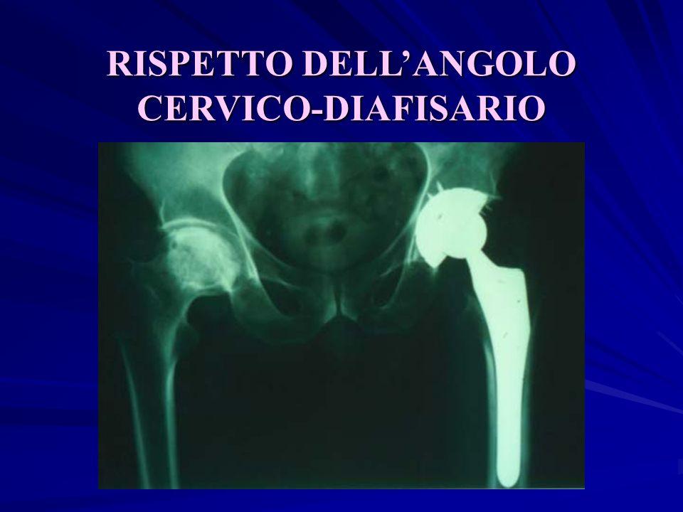 RISPETTO DELLANGOLO CERVICO-DIAFISARIO