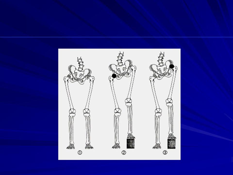 MANCATO RISPETTO DEL CENTRO DI ROTAZIONE FEMORALE Più il centro di rotazione diventa prossimale, più si riduce il momento dei muscoli trocanterici spinta in varo sul femore compenso in valgo sul ginocchio spinta in varo sul femore compenso in valgo sul ginocchio..