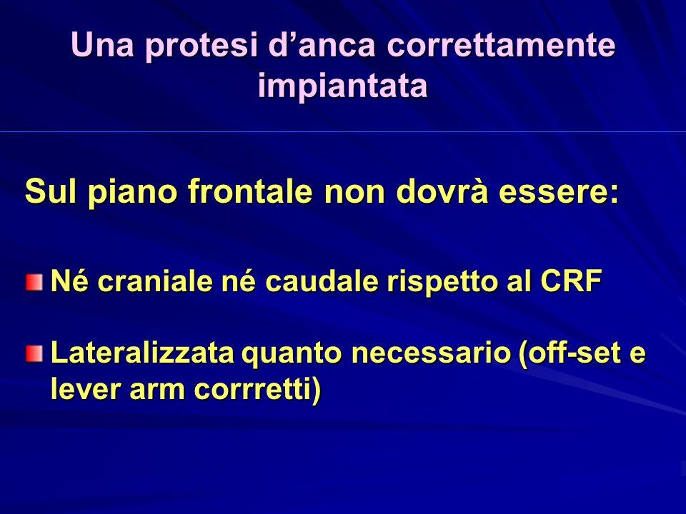 Una protesi danca correttamente impiantata Sul piano frontale non dovrà essere: Né craniale né caudale rispetto al CRF Lateralizzata quanto necessario (off-set e lever arm corrretti)