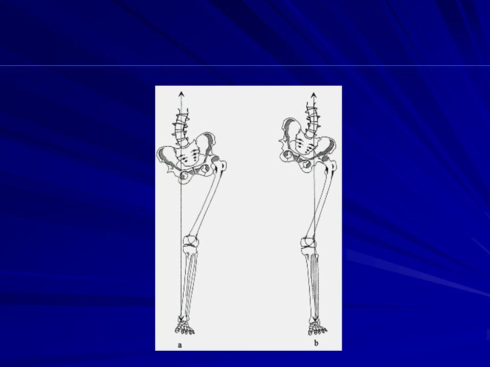 eterometria degli arti inferiori, riduzione delloff-set, insufficienza del braccio di leva degli abduttori, decentramento della testa, instabilità in carico...