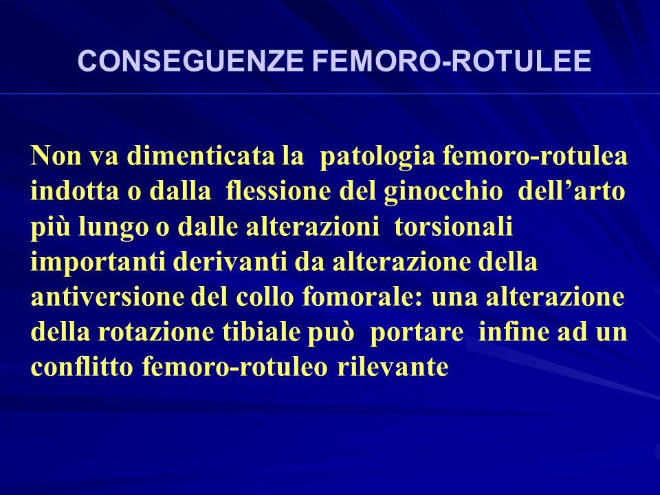 Non va dimenticata la patologia femoro-rotulea indotta o dalla flessione del ginocchio dellarto più lungo o dalle alterazioni torsionali importanti derivanti da alterazione della antiversione del collo fomorale: una alterazione della rotazione tibiale può portare infine ad un conflitto femoro-rotuleo rilevante CONSEGUENZE FEMORO-ROTULEE