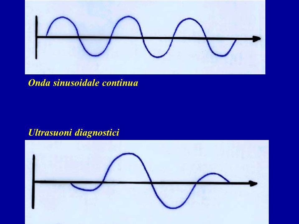 Onda sinusoidale continua Ultrasuoni diagnostici
