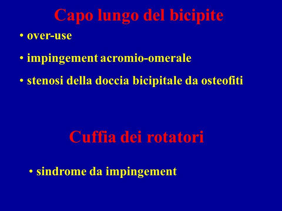 Capo lungo del bicipite over-use impingement acromio-omerale stenosi della doccia bicipitale da osteofiti Cuffia dei rotatori sindrome da impingement