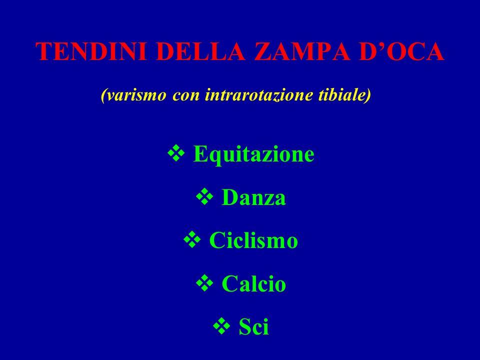 TENDINI DELLA ZAMPA DOCA (varismo con intrarotazione tibiale) Equitazione Danza Ciclismo Calcio Sci