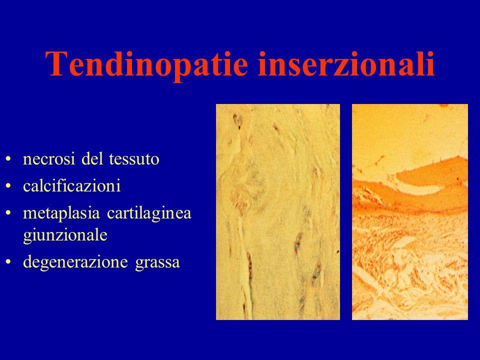 Tendinopatie inserzionali necrosi del tessuto calcificazioni metaplasia cartilaginea giunzionale degenerazione grassa