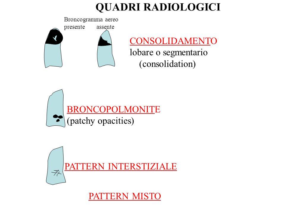 CONSOLIDAMENTO lobare o segmentario (consolidation) BRONCOPOLMONITE (patchy opacities) Broncogramma aereo presente assente PATTERN INTERSTIZIALE QUADRI RADIOLOGICI PATTERN MISTO