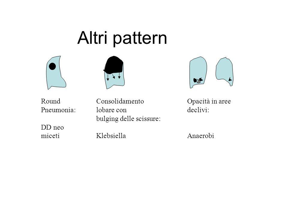 Altri pattern Round Pneumonia: DD neo miceti Consolidamento lobare con bulging delle scissure: Klebsiella Opacità in aree declivi: Anaerobi