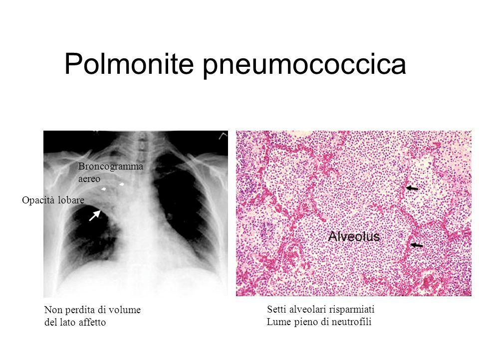 Polmonite pneumococcica Opacità lobare Non perdita di volume del lato affetto Broncogramma aereo Setti alveolari risparmiati Lume pieno di neutrofili