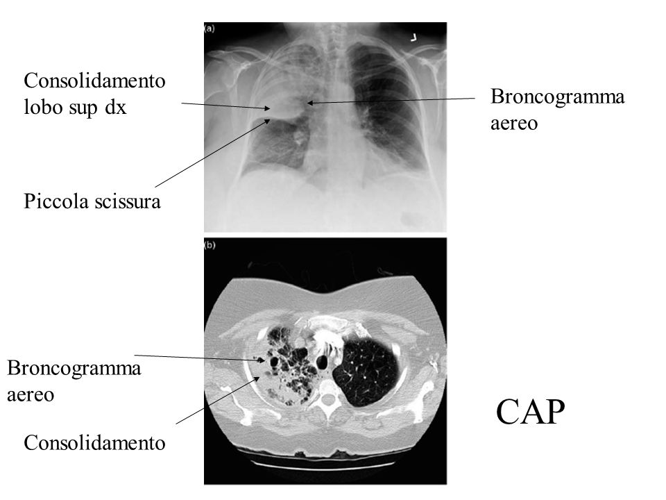 Consolidamento lobo sup dx Broncogramma aereo Piccola scissura Broncogramma aereo Consolidamento CAP
