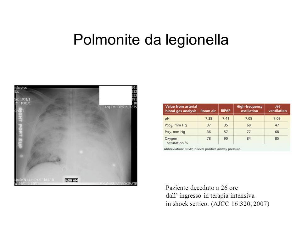 Polmonite da legionella Paziente deceduto a 26 ore dall ingresso in terapia intensiva in shock settico.